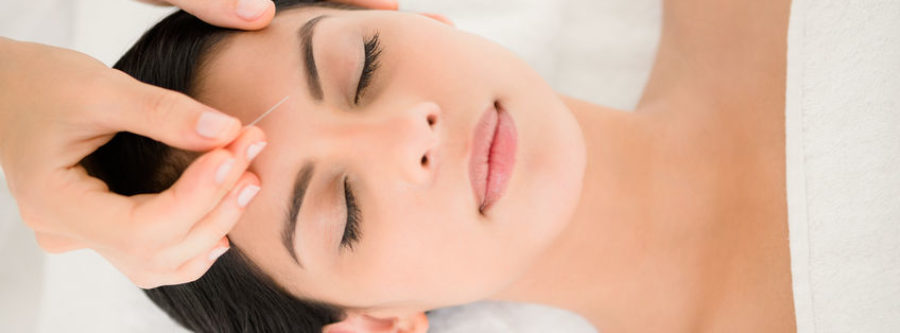 Acupuncture and Stress Relief